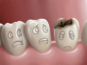 Myths-about-Cavities
