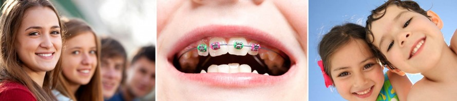Two Phased Orthodontics Treatment Plan at West Valley Pediatric Dentistry