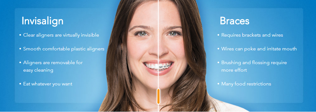 Why People Prefer Invisalign | West Valley Pediatric Dentistry