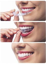 Invisalign Braces at West Valley Pediatric Dentistry
