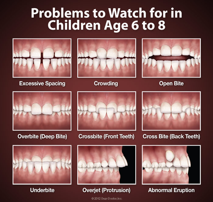 When to see an orthodontist at West Valley Pediatric Dentistry